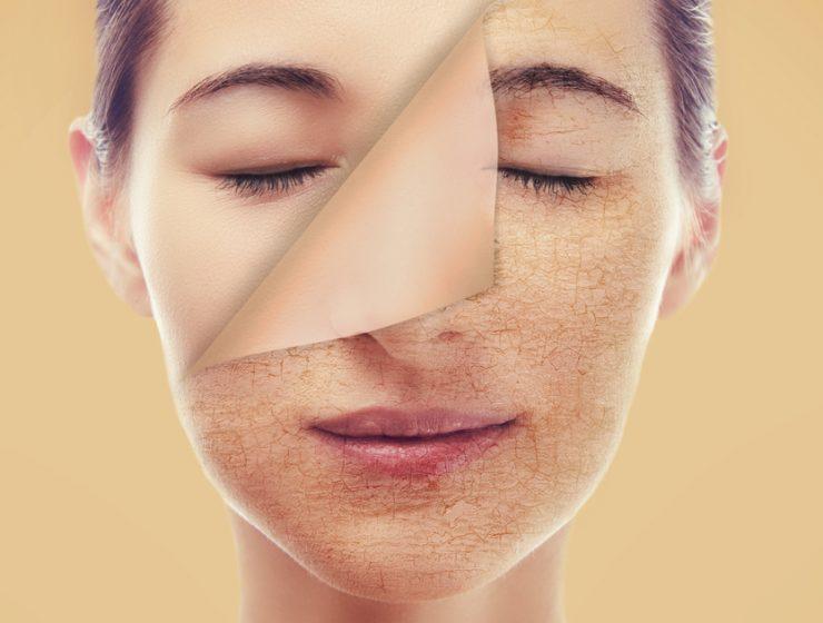 dry-skin-care-tips