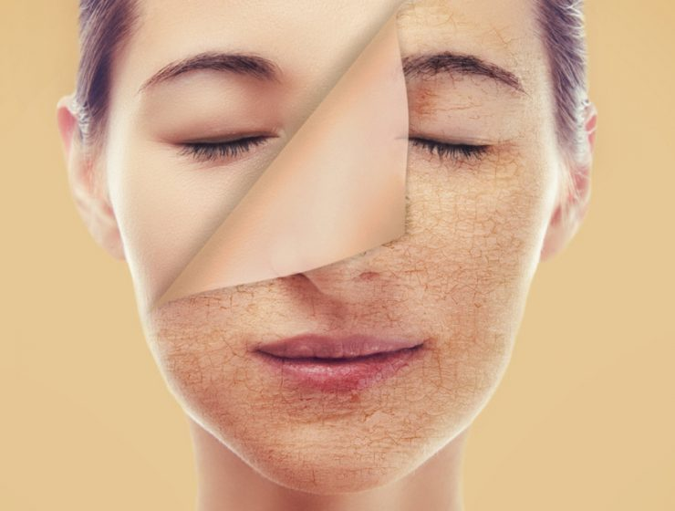 dry skin care tips feature image