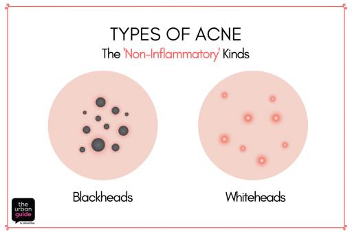 non-inflammatory-types-of-acne-blackheads-whiteheads