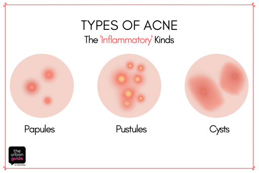 inflammatory acne causes hardened non-pus pimples, pus-filled pimples  called pustules, and hard bumps or cysts  this happens when clogged pores  get infected