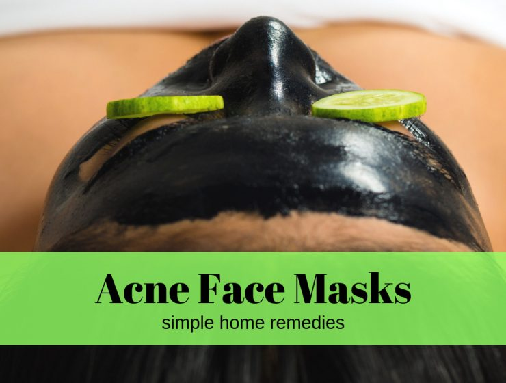acne home remedies face masks